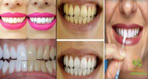 dentes-sim