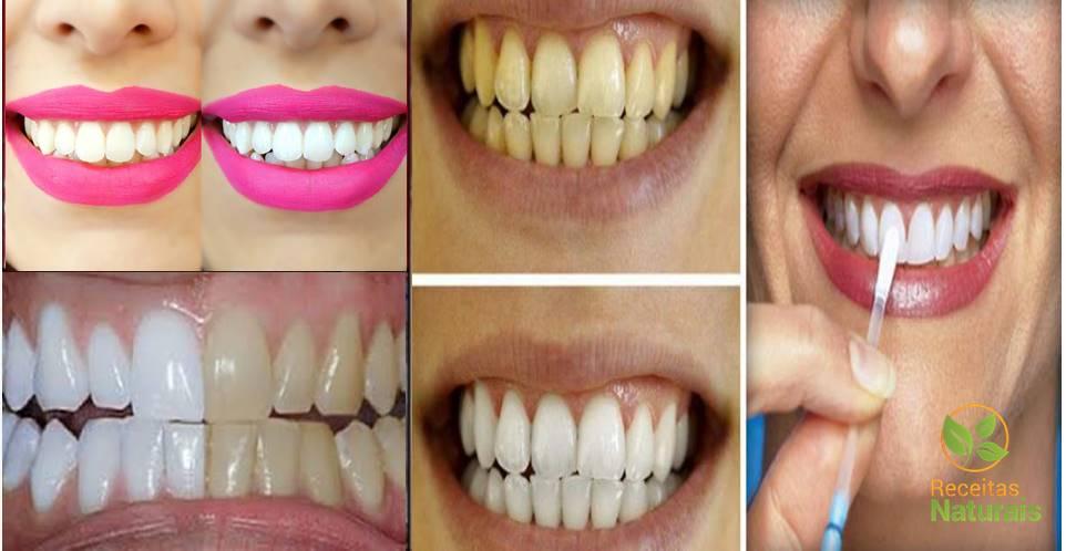 Tenha dentes brancos como nunca usando este método caseiro poderoso e barato