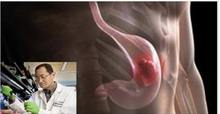 Cientistas japoneses descobrem e ensinam como eliminar naturalmente a bactéria Helicobacter pylori!