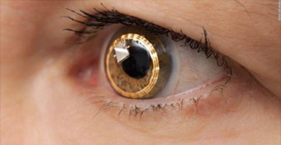 Você pode melhorar sua visão sem cirurgia ou óculos: basta fazer isto todos os dias!