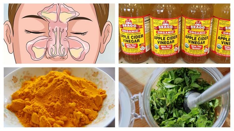 Melhores remédios caseiros e naturais para aliviar a sinusite