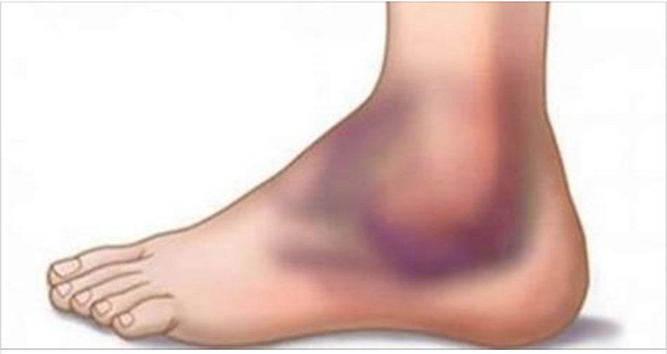 Como curar rapidamente em casa uma torção no tornozelo