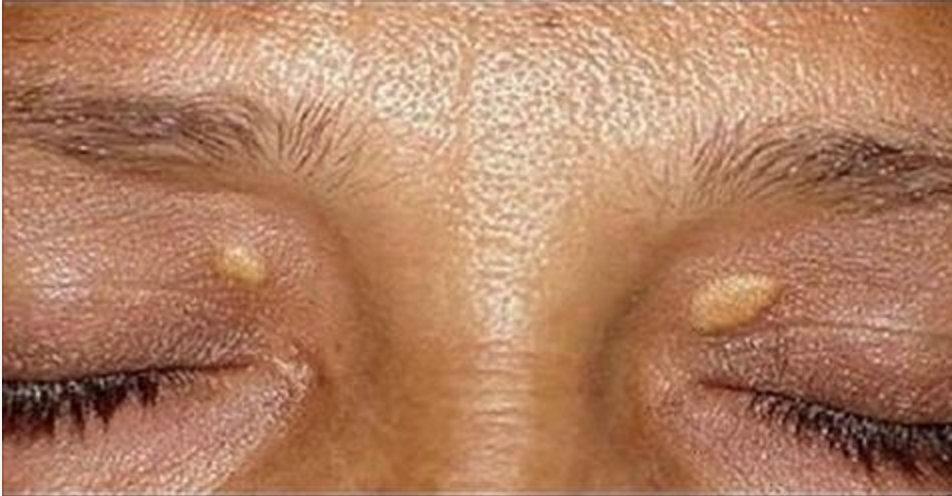 Aplique pele manchas verrugas desaparecer