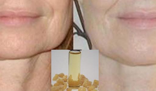 Com 1 gota deste óleo você pode clarear todas as manchas de sua pele