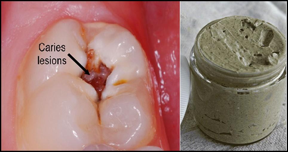 Acabe com placas, cáries e clareie os dentes com esse creme dental caseiro