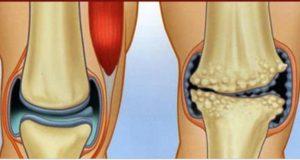 anti-inflamatorios_dores_articulacoes