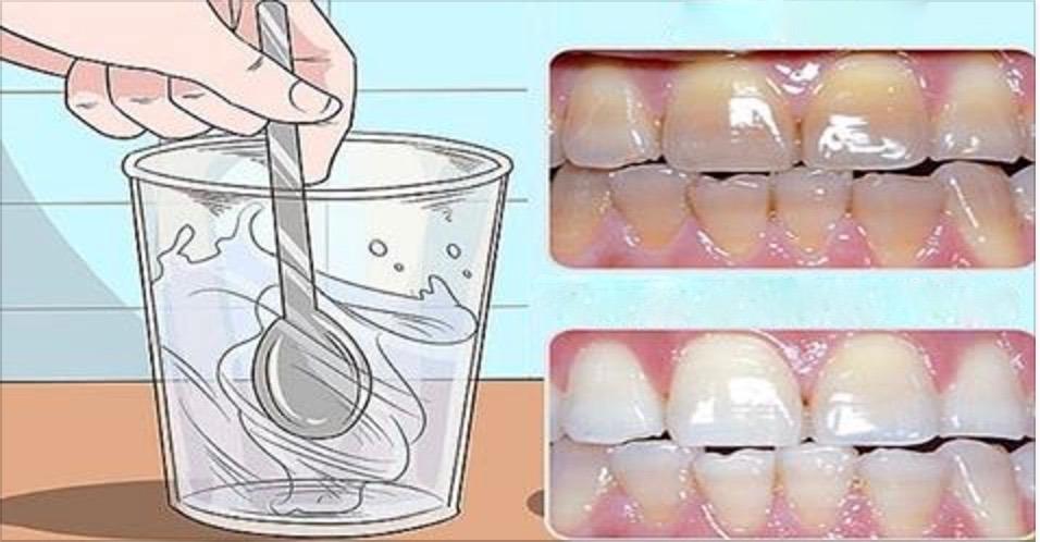 Use apenas 1 colher deste remédio e tenha os dentes … e tenha os dentes brancos que você sempre sonhou em sua vida!