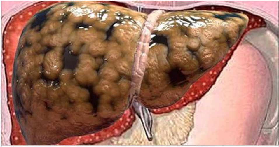 Médico ensina como desintoxicar e eliminar toda a gordura do fígado apenas tomando um simples ingrediente!