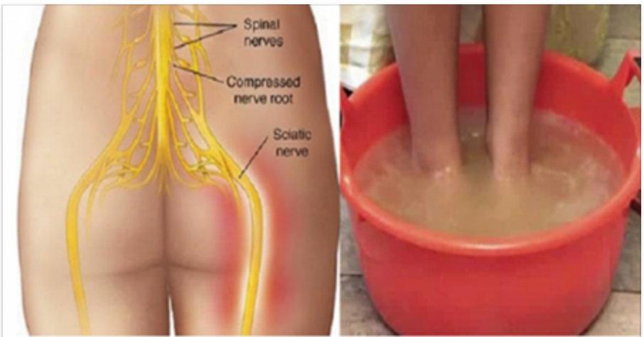 Em apenas 10 minutos, você vai estar livre da dor ciática com este maravilhoso método natural!