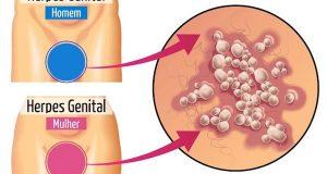 sintomas-da-herpes-genital