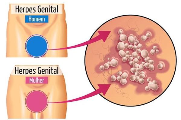 Herpes Genital: Entenda o que é, Causa, Sintomas e Tratamentos.