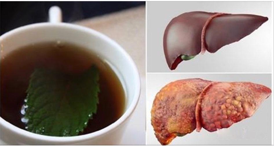 3 bebidas que vão desintoxicar o fígado e eliminar toda a gordura em pouco tempo!