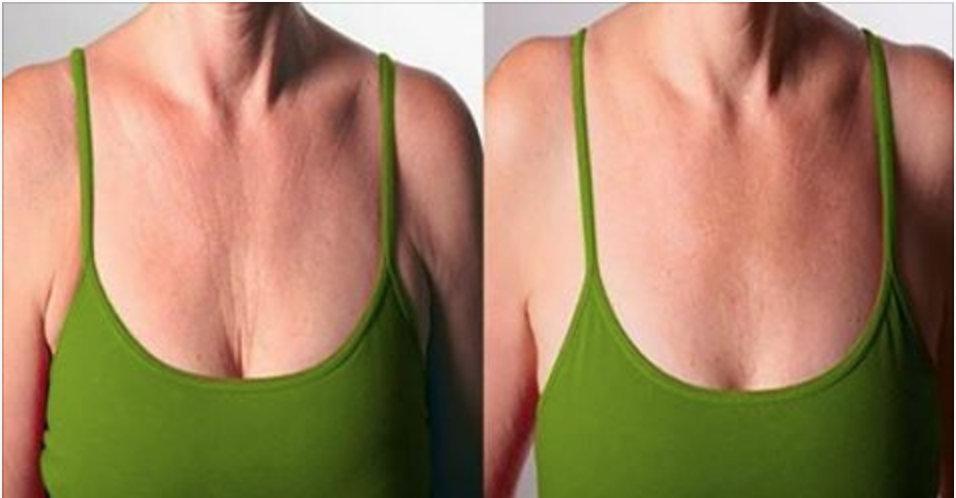 Dicas e remédios naturais que vão ajudar você a eliminar as rugas nos seios e pescoço