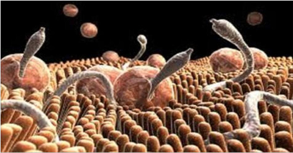 Isto vai expulsar todas as amebas e parasitas do seu corpo – basta 1 copo por dia!
