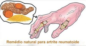 artrite_reumatoide