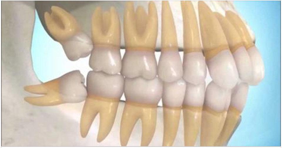 Alerta! Extraíram seus dentes do siso? Este pode ser o maior erro que você cometeu! Saiba por quê!