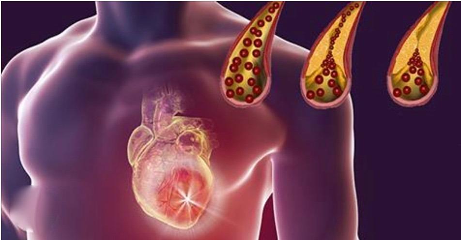 Com estes tratamentos caseiros, suas artérias estarão totalmente desentupidas em 40 dias ou menos!
