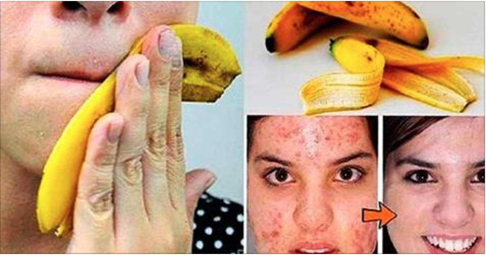 10 usos surpreendentes e desconhecidos da casca de banana – o #5 vai impactar você!