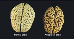 cerebro_-_vitaminas