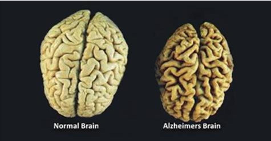 Estas são as 3 vitaminas que você deve consumir para impedir a destruição do seu cérebro!
