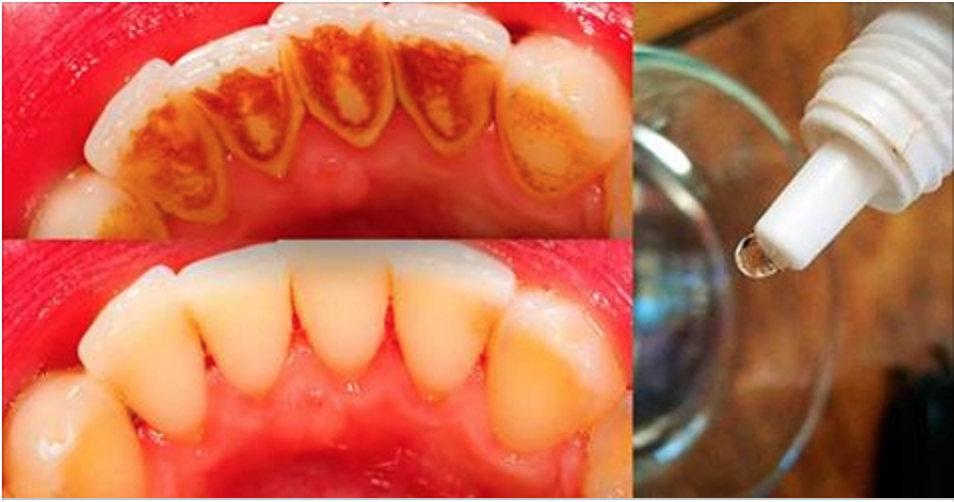 Isto vai eliminar todo o tártaro e deixará seus dentes com um branco incrível em muito pouco tempo!