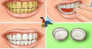 dentes_brancos_-_novo