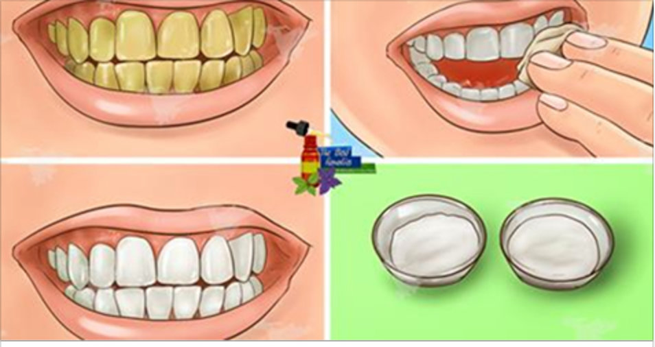 Garantido! Clareie seus dentes amarelos em menos de 3 minutos com este incrível tratamento natural!
