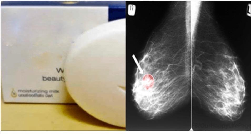 Atenção, todas as mulheres: este sabonete pode causar câncer de mama!