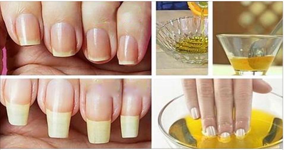 Suas unhas se quebram com facilidade? Com esta receita, isso vai parar de acontecer e elas crescerão muito mais rápido!