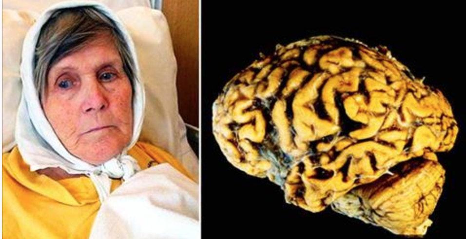 Como evitar a perda da memória e o mal de Alzheimer fazendo este exercício todas as noites antes de dormir!