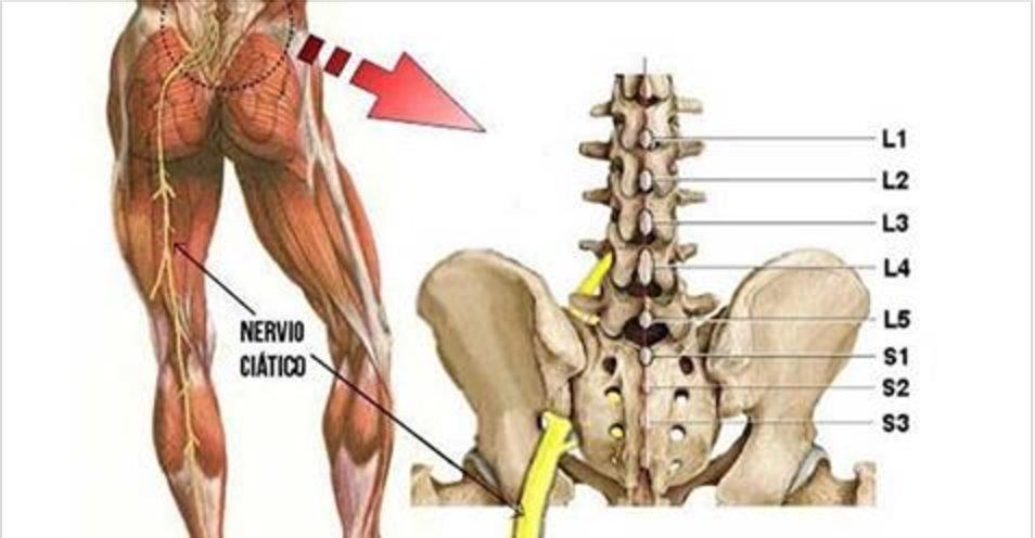Elimine a dor ciática rapidamente com este método muito fácil –  dura apenas 1 minuto e você vai depois recomendar a todos os seus conhecidos!