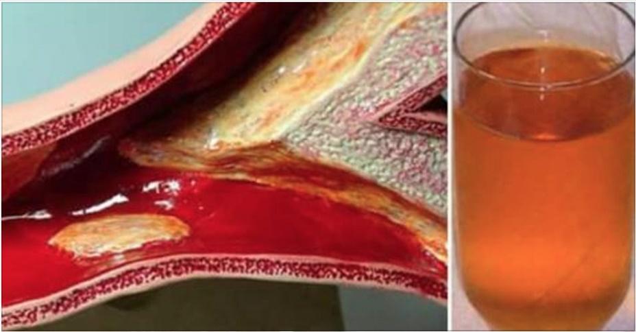 7 formas naturais (e econômicas) para você limpar suas artérias e reduzir a gordura corporal!