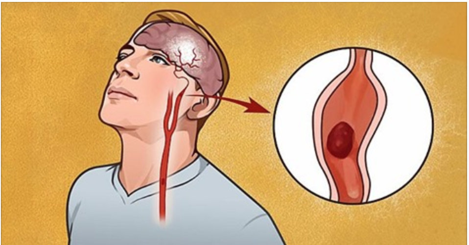 Os 7 primeiros sinais de aviso de um acidente vascular cerebral que todo mundo deveria saber!