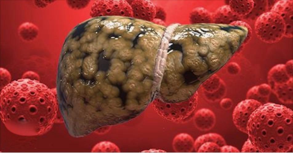 8 alimentos detox para o fígado – cure seu fígado e volte a ter energia e imunidade alta!