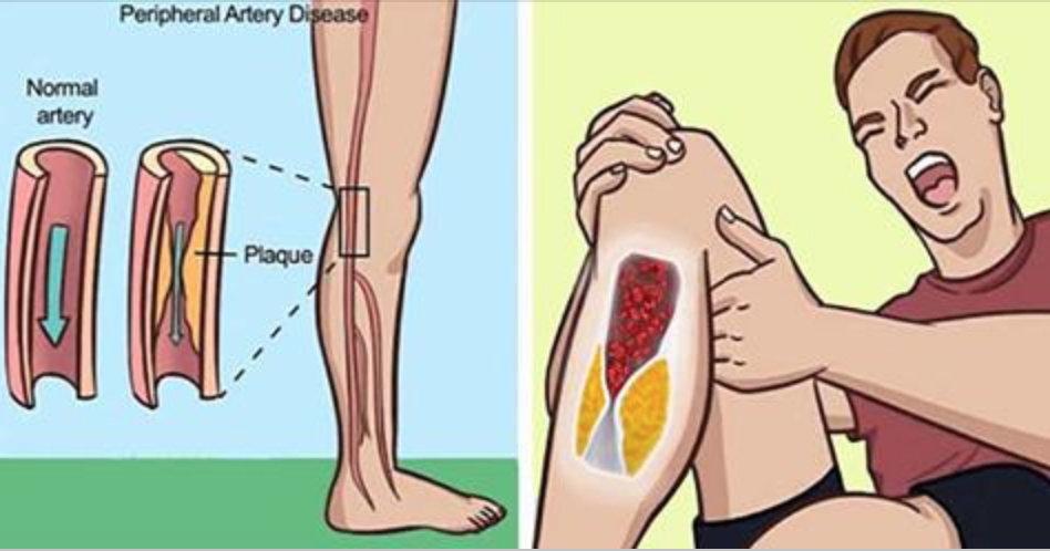 8 sinais de que suas artérias estão entupidas – e como resolver o problema com tratamentos naturais!