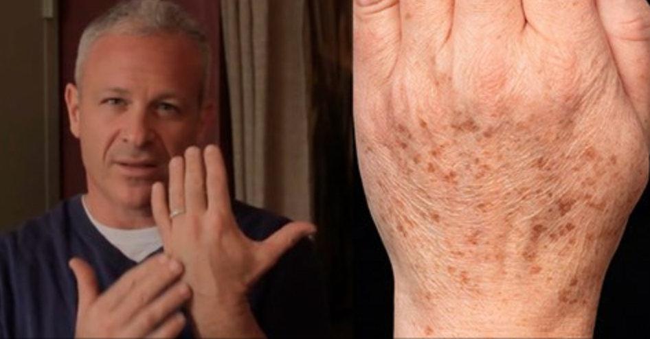 Médico americano recomenda: este truque simples eliminará rapidamente manchas na pele! Apenas 2 ingredientes!