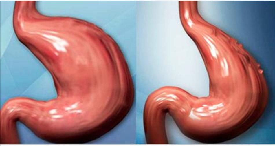 Como reduzir o seu estômago sem cirurgia e de forma totalmente natural!