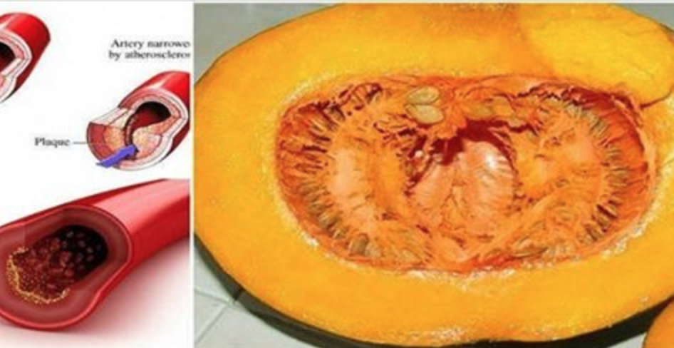 A receita que tem surpreendido até os médicos – apenas 1 abóbora para normalizar colesterol, triglicerídeos e glicose!
