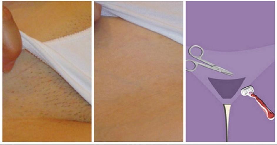 Conheça a melhor forma de remover pêlos indesejáveis para sempre e em casa!