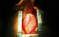 Médico resolve falar a verdade – estamos todos sendo enganados: esta é a verdadeira causa das doenças do coração!