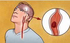O corpo vai avisar as mulheres antes de um derrame: 7 sinais de alerta que você jamais deve ignorar!
