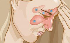 Pare de sofrer com asma, rinite e sinusite – experimente estes poderosos remédios caseiros