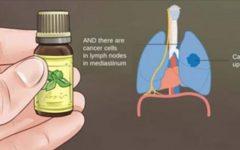 O óleo que faz milagres – cura enxaqueca, dor nas costas, elimina manchas, vermes e combate o câncer