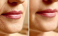 Testadas e aprovadas – 5 receitas caseiras que eliminam os problemas mais comuns de pele …
