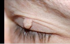 Você tem verrugas no seu corpo? Aplique isto e elimine todas para sempre