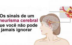 Os sinais de um aneurisma cerebral que você não pode ignorar