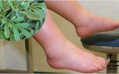A planta que evita a retenção de líquido, ajuda a perder peso e combate varizes