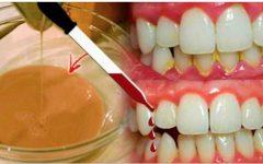 Apenas um pouco disto vai limpar seus dentes e deixá-los maravilhosamente brancos