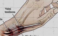 As dores nas mãos e nos pés podem ser tenossinovite: é assim que se trata e se cura!