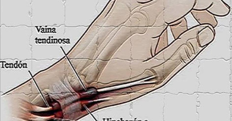 tenossinovite